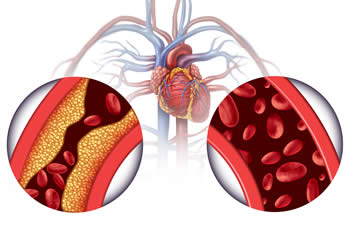 Aderverkalking tegengaan | artherosclerose