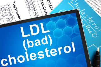 Hoge cholesterol verlagen